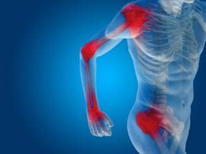 chicago il joint pain doctor