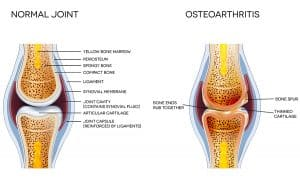 osteoarthritis chicago arthritis specialist