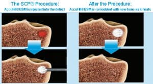 joint doctor in chicago il subchondroplasty therapy for arthritis joint pain