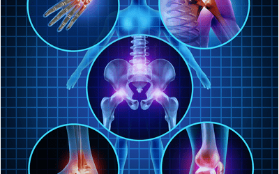 Cellular Orthopedics for Osteoarthritis