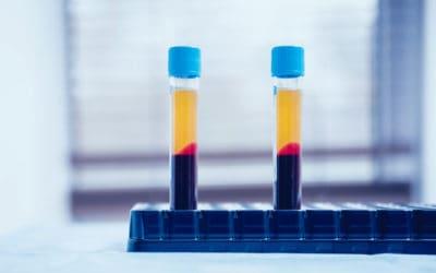 Alpha 2 Macroglobulin Injections – A2M: A Treatment for Arthritis?