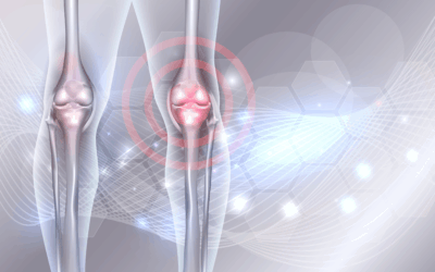 Recovery following a Stem Cell Procedure for Arthritis